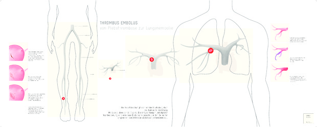 Bild:  Thrombus — Embolus